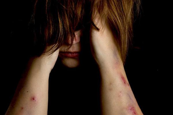 Trầm cảm, tự kỷ và Khuynh hướng tự sát 1
