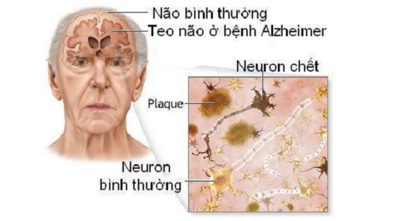 Chẩn đoán chứng sa sút trí tuệ thể Lewy 1